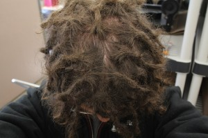 top-of-dreads